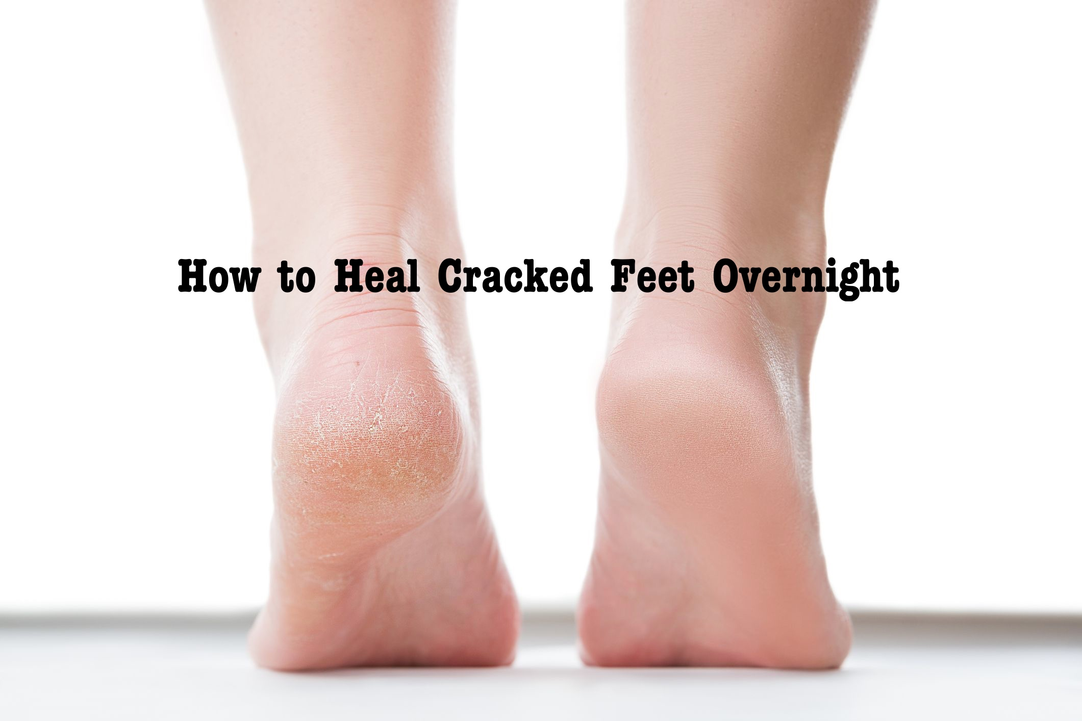 How to Heal Cracked Feet Overnight
