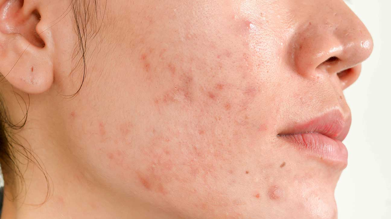 How to remove pimple marks naturally at home