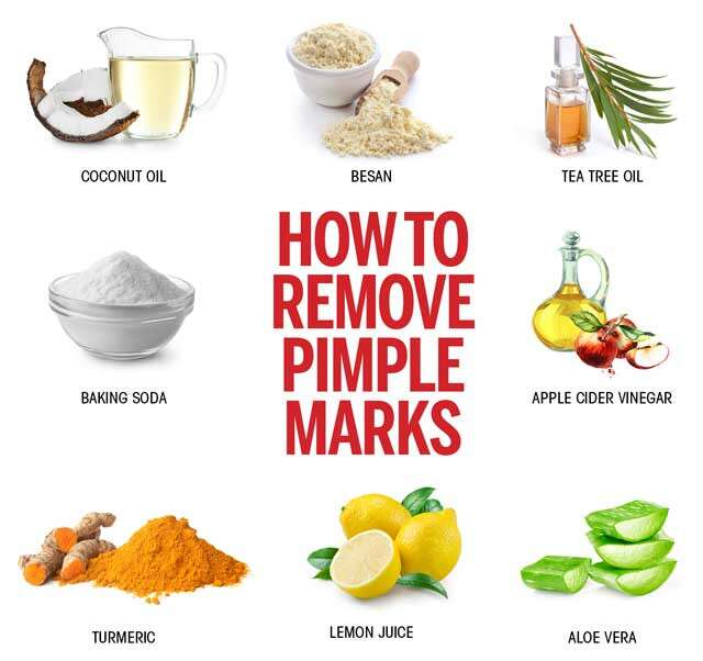 how-to-remove-acne-naturally-at-home