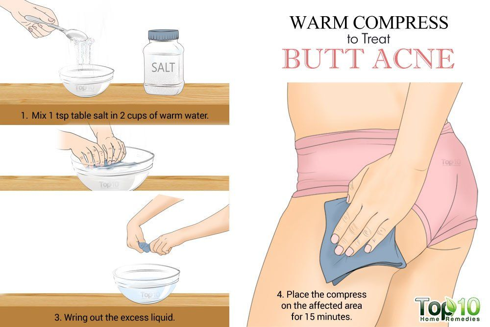 Warm Compress To treat Butt Acne - How to treat butt acne