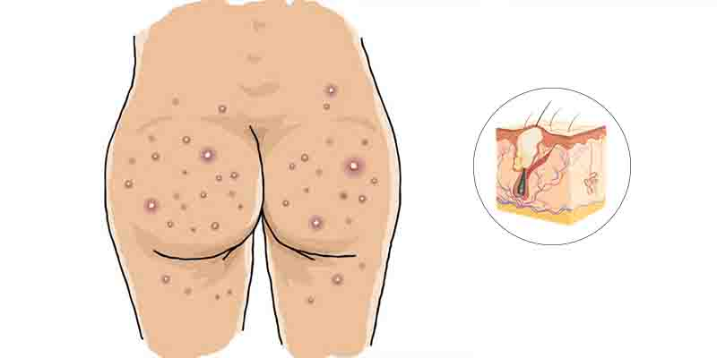 What is Butt acne - Treatment of butt acne