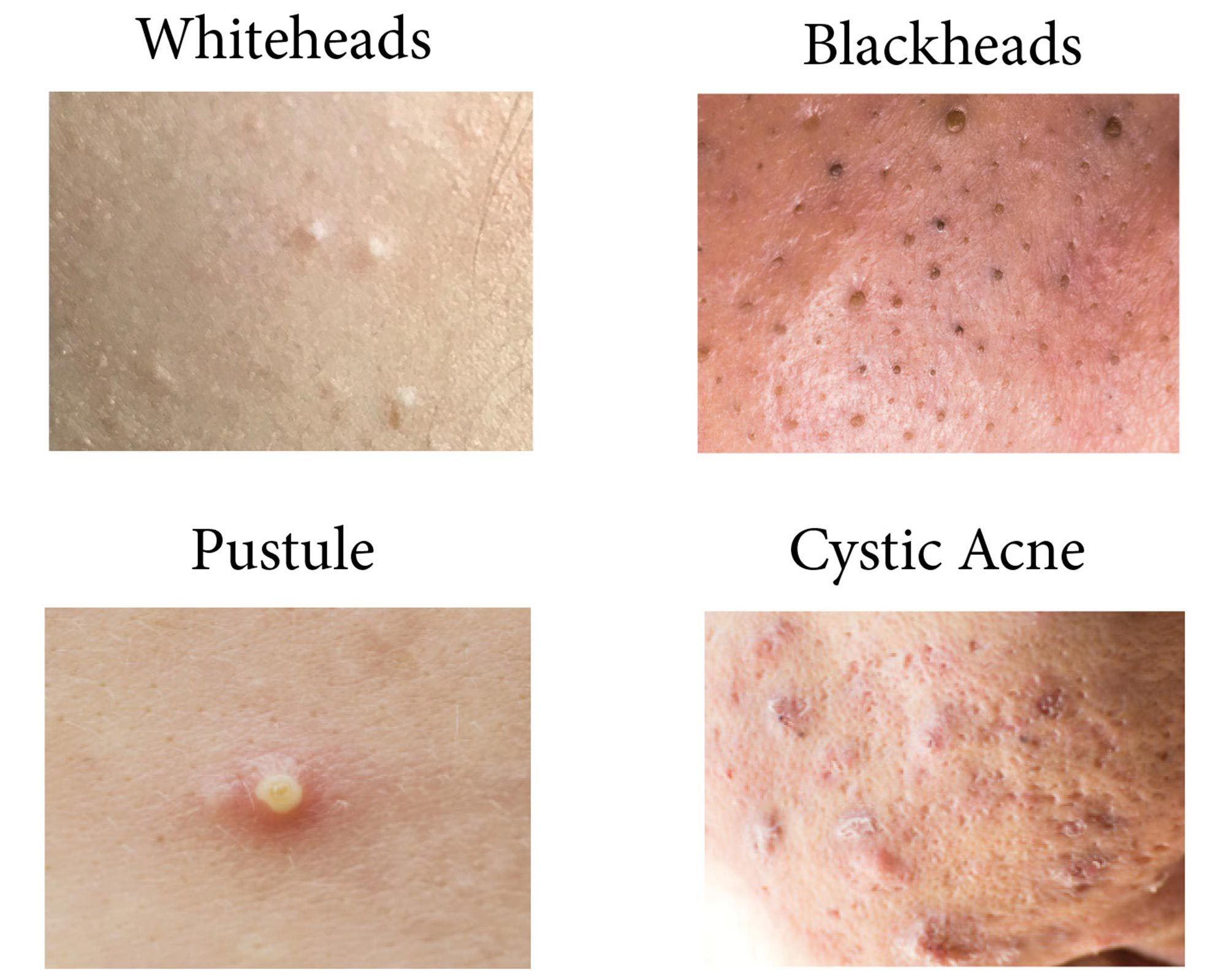 Difference between cystic acne and acne