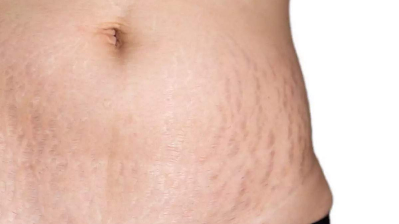 How to Get Rid of Stretch Marks Forever